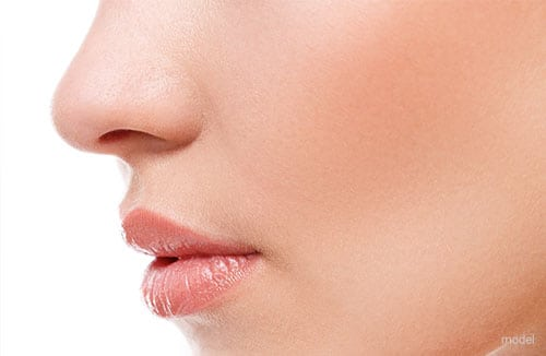 Rhinoplasty | Dr. David Morales | Dallas, TX
