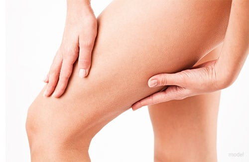 Thigh Lift | Dr. David Morales | Dallas, TX