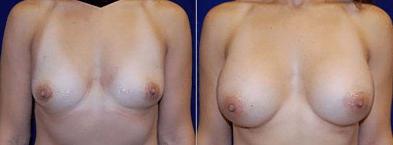 Breast Augmentation Before and After Photo with Natural Looking Results