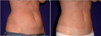 Need to Go Down One Pant Size? Liposuction Can Help! | Dr
