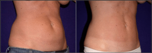 Before and After Liposuction Patient by Dr. Morales