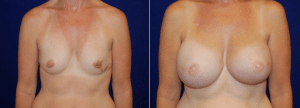 Bilateral Latissimus Flap Reconstruction with Silicone Implants by Dr. Morales