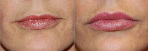 Morales LIP AUGMENTATION