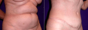 Morales Tummy Tuck Patient