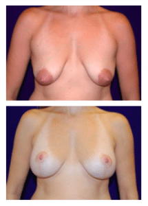 Breast Lift Patient by Dr Morales