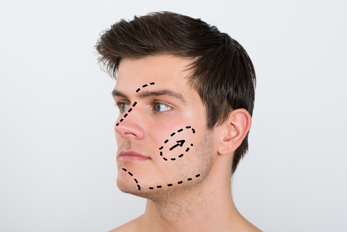 young man with perforation lines marked on face-img-blog
