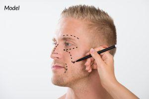 Model Man Getting Plastic Surgery